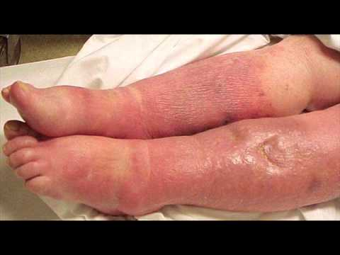Newborn Baby Infections  Septicemia Health Education Infection Control Icsp Urdu Hindi
