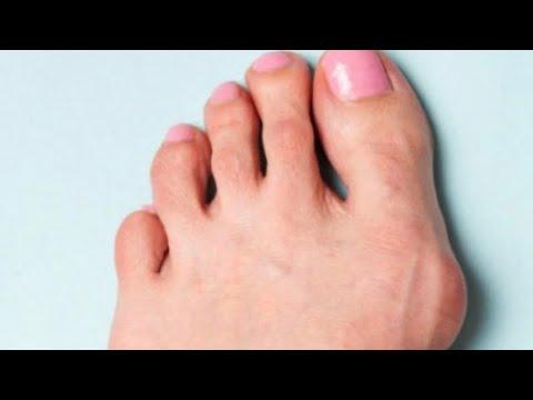 Косточка на большом пальце ноги!Как лечить