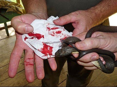 VENOMOUS SNAKE BITES FINGER!!! (Blood Warning)