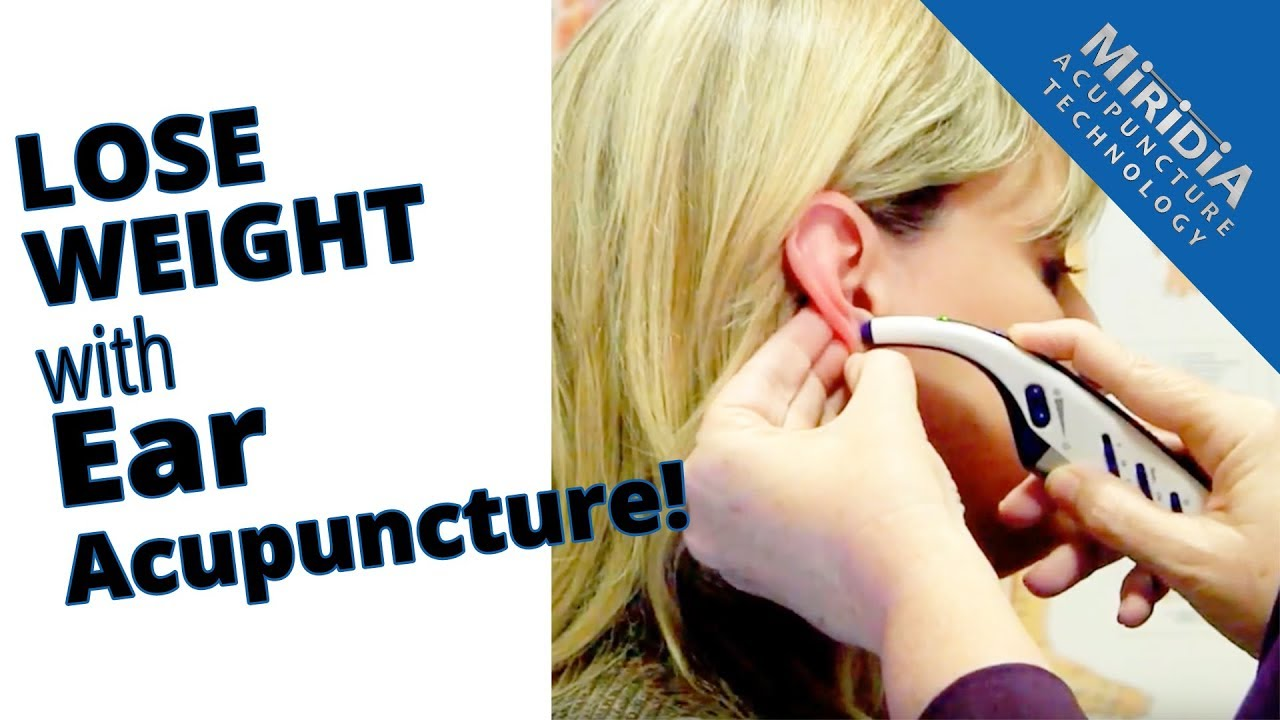 Ear acupuncture for weight loss also youtube rh