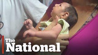 Zifan terdiagnosa meningitis bakteri saat di rawat di RS pertama. Selanjutnya di RS berbeda, Zifan t.