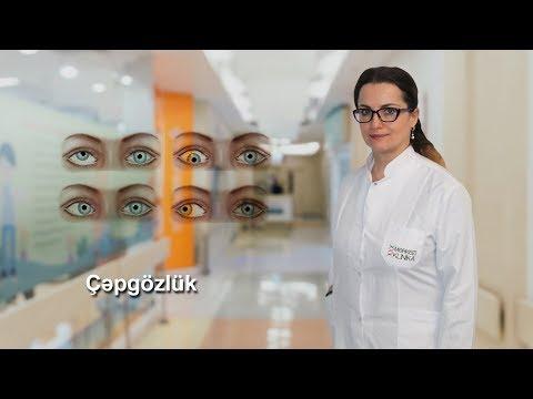 Dr. Arzu Eyvazova  İxtisas Oftalmoloq  Mövzu: Çəpgözlük
