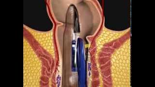 Chữa bệnh trĩ bằng phương pháp Khâu treo trĩ