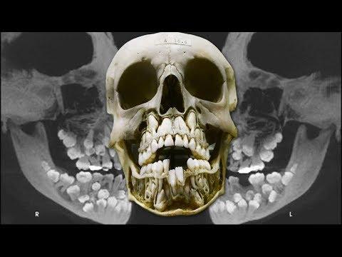 ЛИШНИЕ ЗУБЫ полидонтия или сверхкомплект зубов