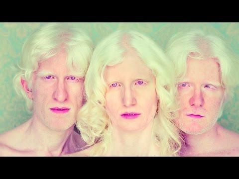 8 интересных фактов об альбиновах
