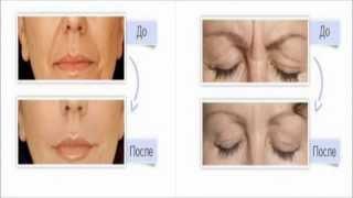Профессиональная косметология лица(, 2013-12-15T23:55:32.000Z)