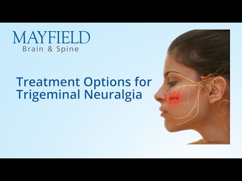 Facial Pain, Trigeminal Neuralgia | Cincinnati, OH Mayfield