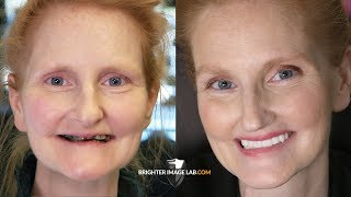 Mother's Day Extreme Smile Makeover - Dental Veneers by Brighter Image Lab For Daughter's Wedding