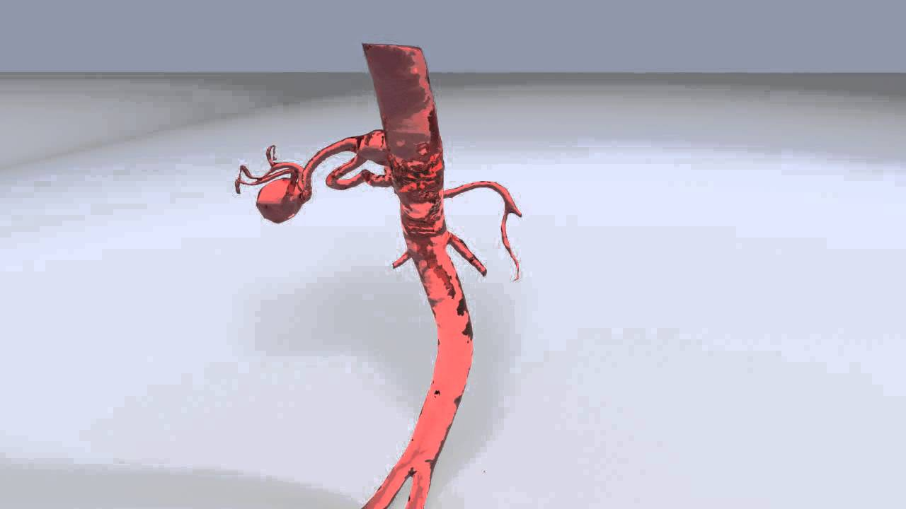 Rendering Of Splenic Artery Aneurysms Youtube