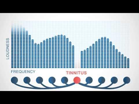 Tinnitus Treatment With Your Favorite Music - Tinnitracks