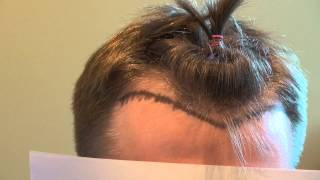Receding Frontal Hairline Bald Hair Loss Transplant Surgery Northern CA Dr. Diep www.mhtaclinic.com