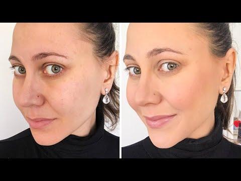 Comment cacher les pores dilatés selon son type de peau ?