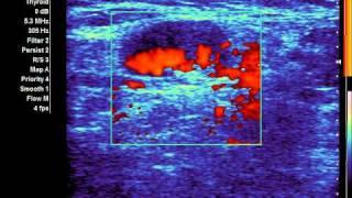 УЗИ кровотока в узле правой доли щитовидной железы с окрашиванием фона(, 2011-08-18T08:29:46.000Z)