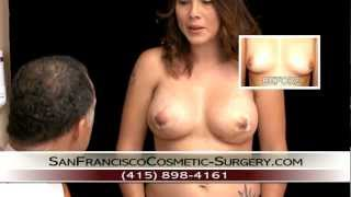 Repeat youtube video Breast Augmentation | Implant San Francisco,California - Part 4of 6 - First Post-Op- Dr. Delgado