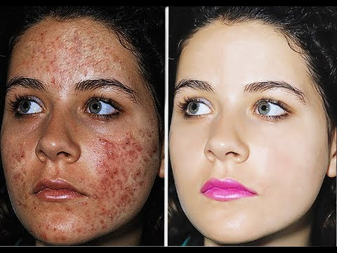 Photoshop Tutorial: How to Quickly Smooth Skin clean face and Remove pimple  Blemishes & Scars