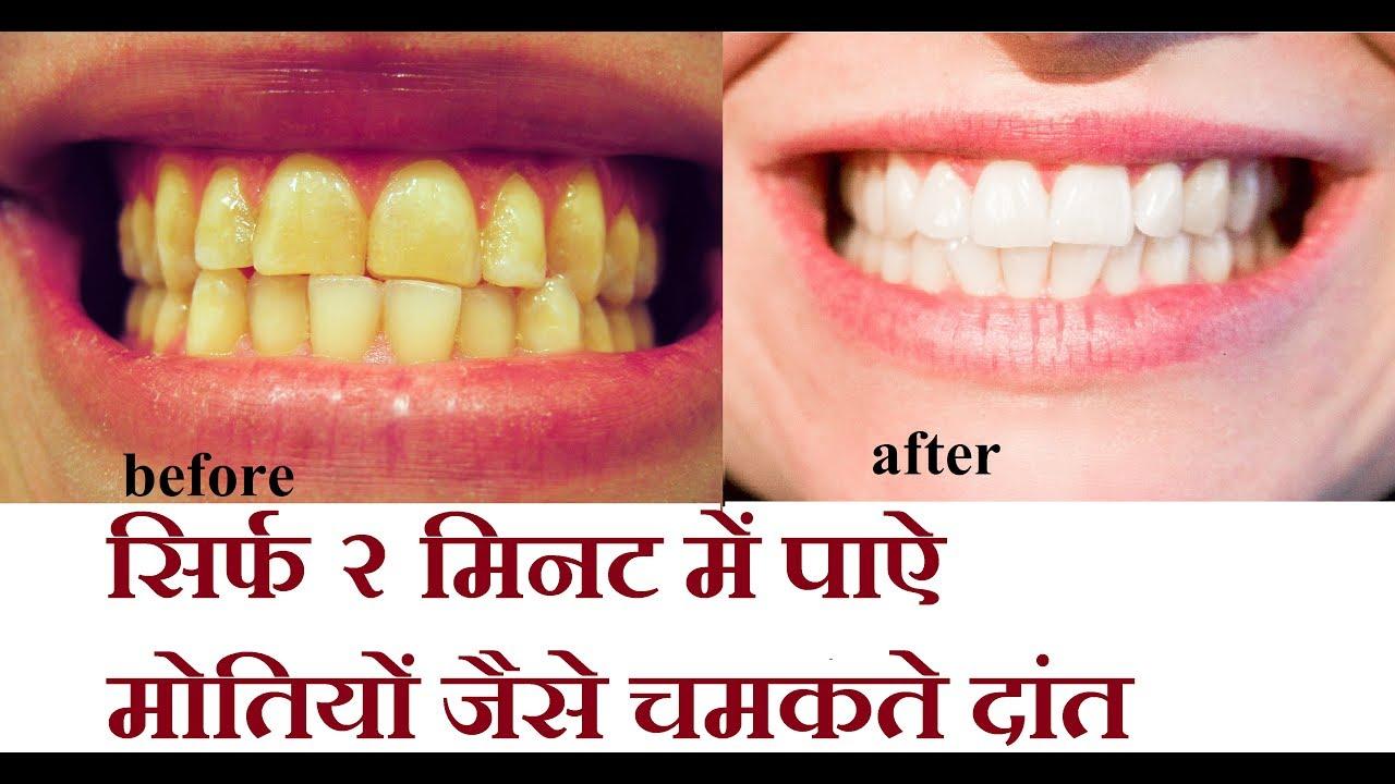 2मिनट में पीले और गंदे दाँतों को मोती जैसा चमकाने का चमत्कारिक घरेलू उपाय  /teeth whitening - YouTube