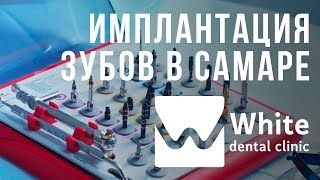 Имплантация зубов в Самаре. Nobel Biocare. Cтоматологическая клиника - White Dental Clinic Самара.(, 2018-02-13T07:48:11.000Z)