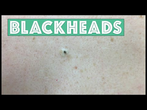 Just Blackhead Extractions!!