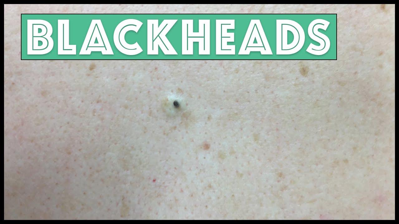 Download Just Blackhead Extractions!!