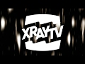 Download XRAY TV!!! MP3 song and Music Video