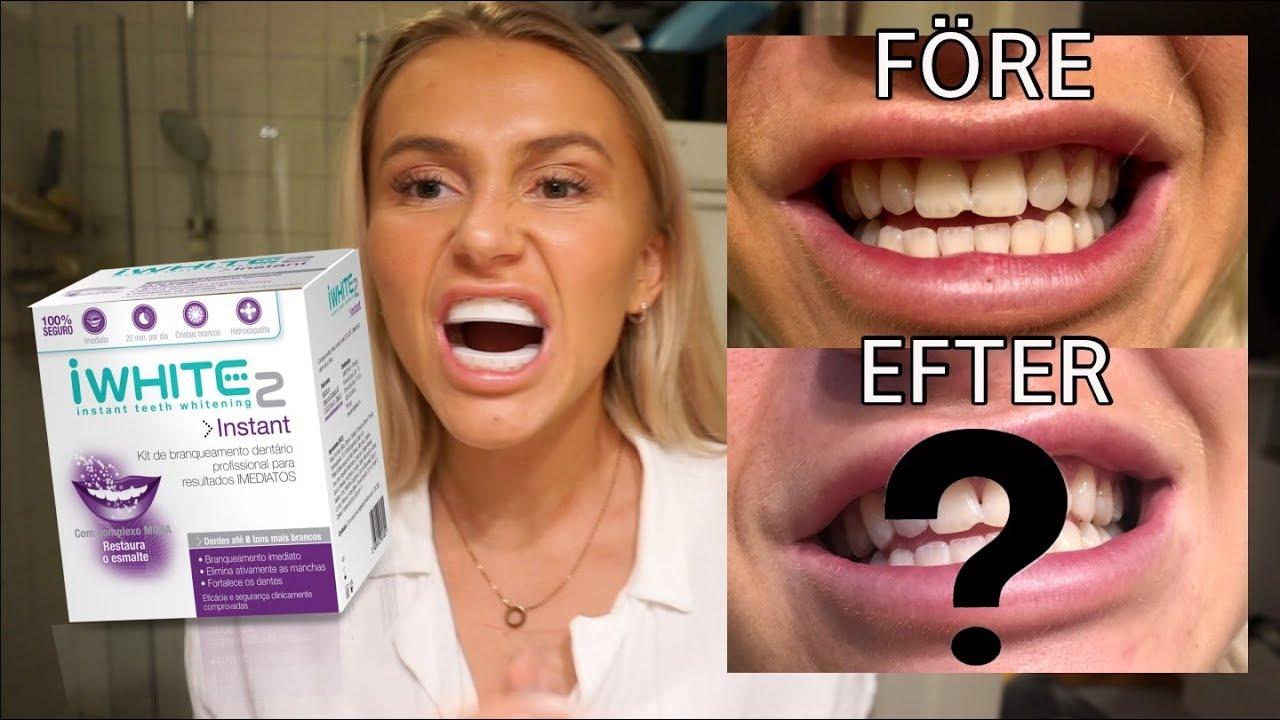 tandblekning hemma flashback