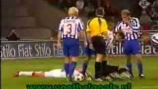 horrific-soccer-injury