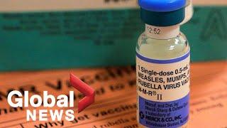 Measles outbreak: New York City declares public health emergency