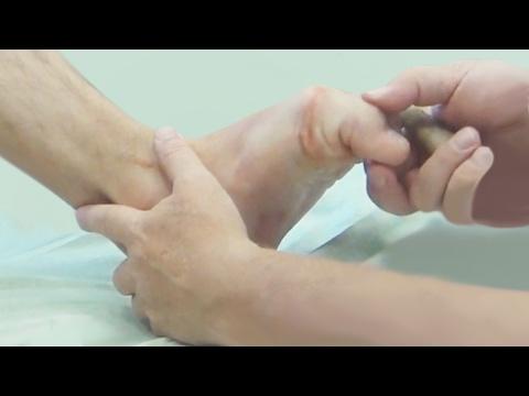 Функциональная анатомия стопы. Мышечные цепи и связь рефлекторных зон стопы с внутренними органами