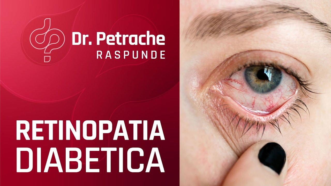 exerciții oculare îmbunătățind liliecile de vedere)
