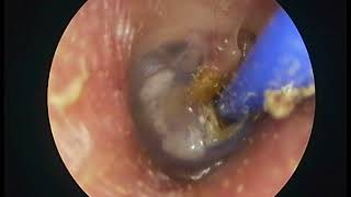 T Tube 8 months follow up