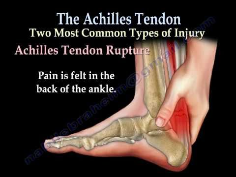 Achilles Tendon rupture ,tear, tendonitis - Everything You Need To Know - Dr. Nabil Ebraheim