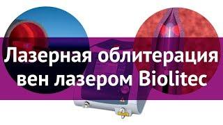 Лазерная облитерация вен лазером Biolitec(Подробнее о лазерной облитерации вен: ..., 2015-02-24T08:29:10.000Z)