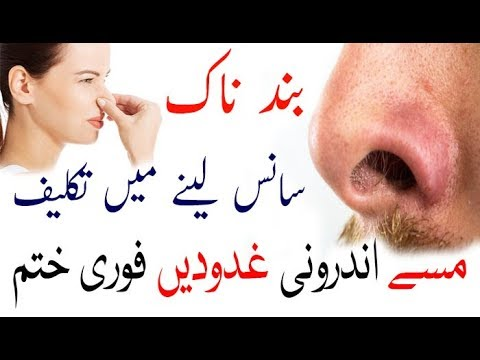 Easy Way Remedy Open To Close Nose||Nose Treatment at Home
