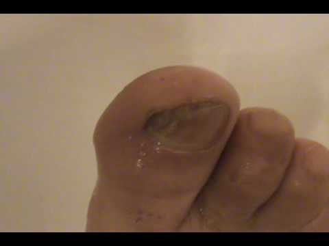Nail Fungus Cracked Heels, possible CURE?