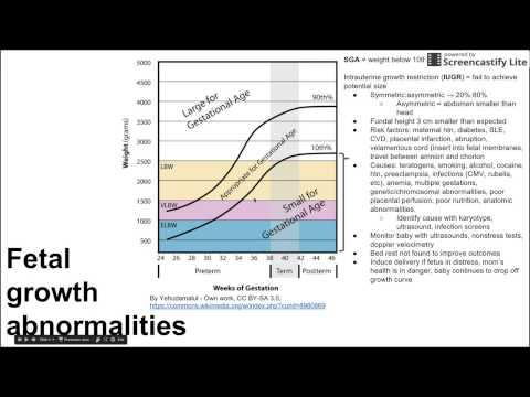 fetal-growth-abnormalities