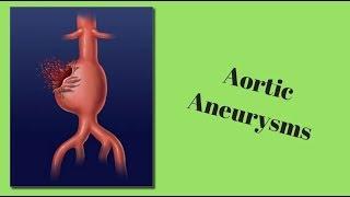 Aneurisma de Aorta: causas, síntomas y tratamiento.