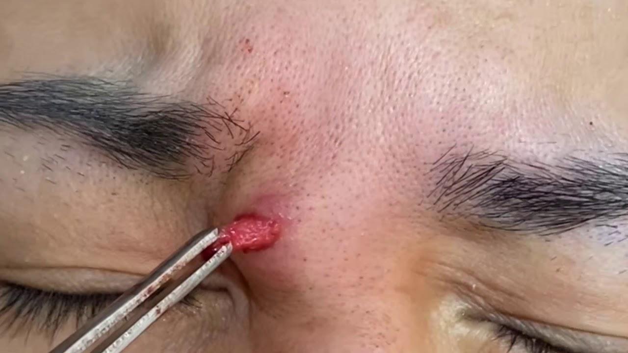 臉部皮膚腫瘤切除 美麗新城診所莊禮謙醫師 face tumor excision, Dr George