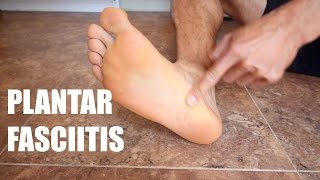 PLANTAR FASCIITIS: RUNNING INJURY PREVENTION EXERCISES AND PREVENTION | Sage Canaday