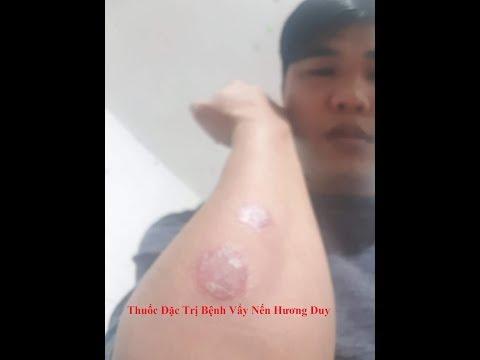Thuốc Đặc Trị Bệnh Vẩy Nến Hương Duy   Khỏi Sau 1 Tuần
