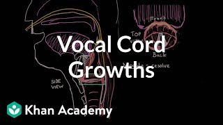 Vocal cord growths | Respiratory system diseases | NCLEX-RN | Khan Academy