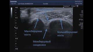 Межберцовая связка и межберцовый синдесмоз