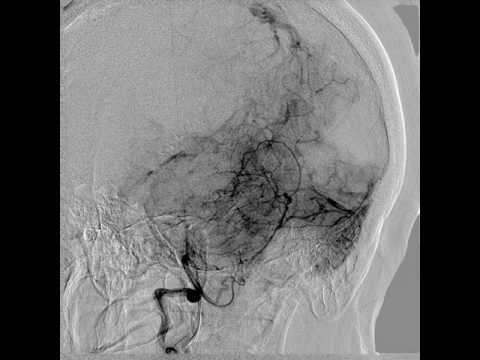Diagnostic Cerebral Angiography and technique of vertebral artery catheterization