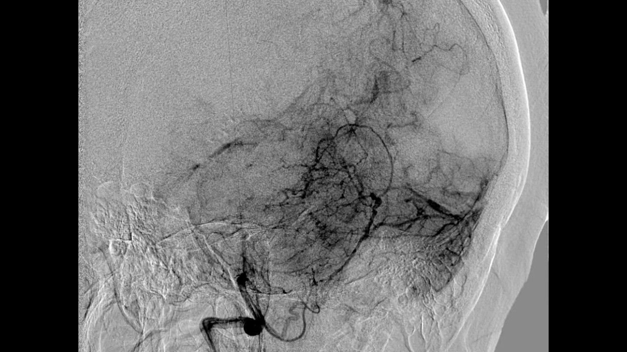 Diagnostic Cerebral Angiography and technique of vertebral artery ...