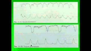 видео КТГ (кардиотокография) плода при беременности: норма, расшифровка