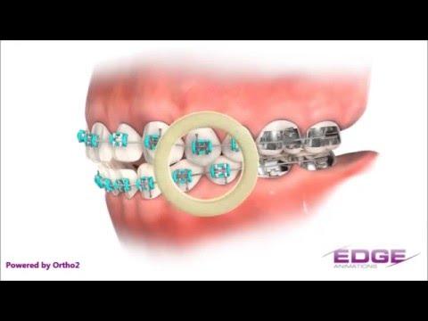 ligas,ortodonciaиз YouTube · Длительность: 3 мин18 с