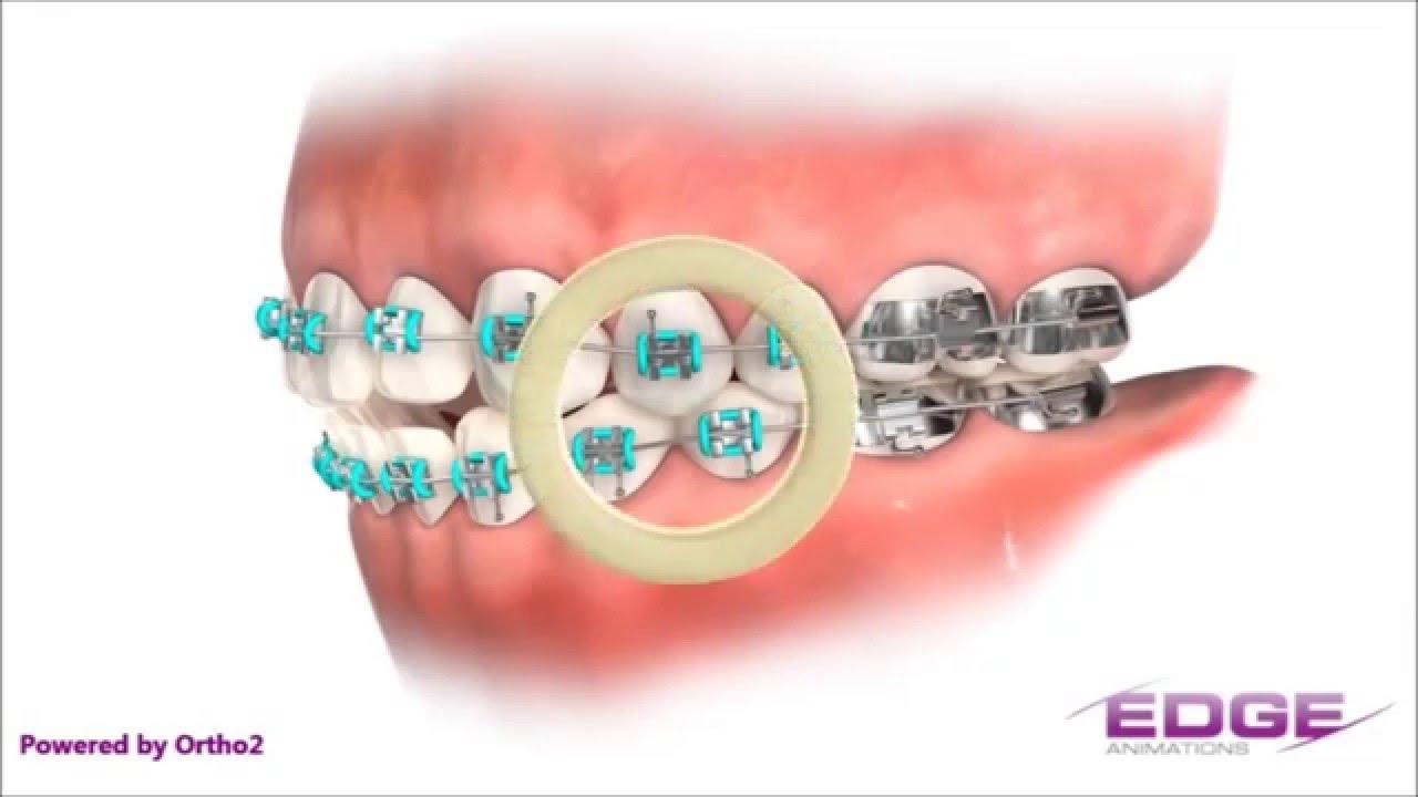 Elásticos Intermaxilares Ortodoncia Ortodental México Youtube