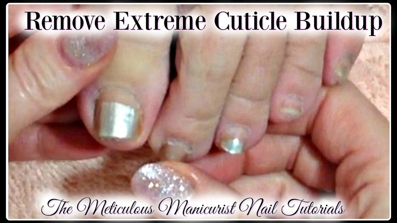 👣 Pedicure Tutorial: Cleaning Extreme Amount of Dead Cuticle Skin ...