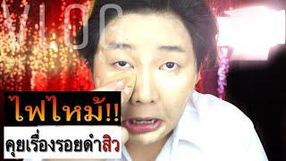 [VLOG] ไฟไหม้!!!!+ อัพเดทเรื่องรอยดำจากสิว | จือปาก
