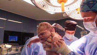 42 Haftlalık Doğum Hikayesi  Son a Karar Verilen Epidural DoğumM