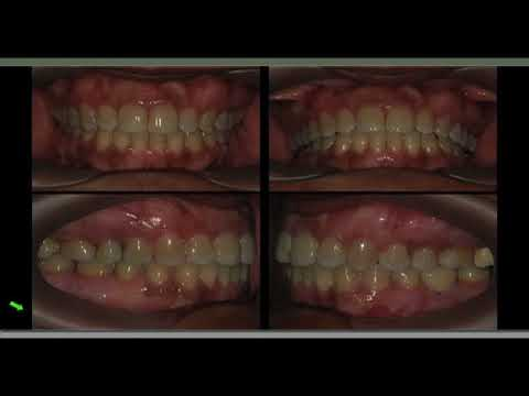 Complete Clinical Orthodontics (CCO)